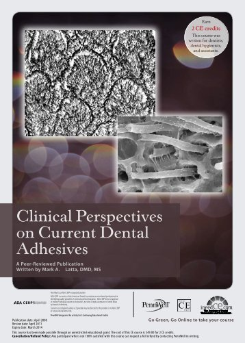 Clinical Perspectives on Current Dental Adhesives - IneedCE.com