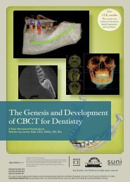 The Genesis and Development of CBCT for Dentistry - IneedCE.com