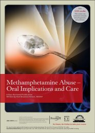 Methamphetamine Abuse - Oral Implications and Care - IneedCE.com
