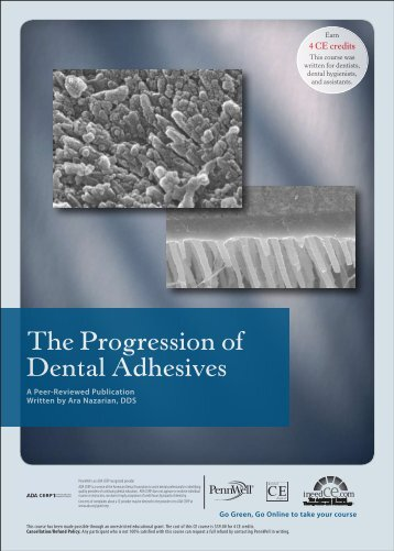 The Progression of Dental Adhesives - IneedCE.com