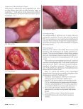 Ouch, This Ulcer Hurts! - IneedCE.com - Page 3