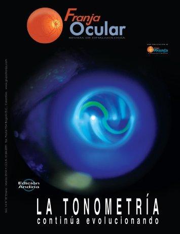 Franja Ocular 87