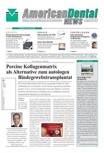 Porcine Kollagenmatrix als Alternative zum autologen ...