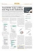 Porcine Kollagenmatrix als Alternative zum autologen ... - Seite 4