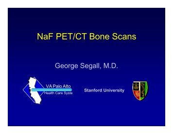 NaF PET/CT Bone Scans