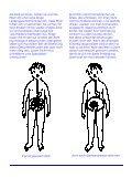 Sphinkterdysplasie - was ist das - Perry Fehr - Page 2