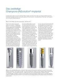 Das zweiteilige Champions-(R)Evolution ... - Champions-Implants