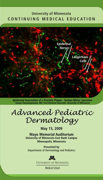 Advanced Pediatric Dermatology - University of Minnesota ...