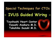 IVUS Guided Wiring - summitMD.com