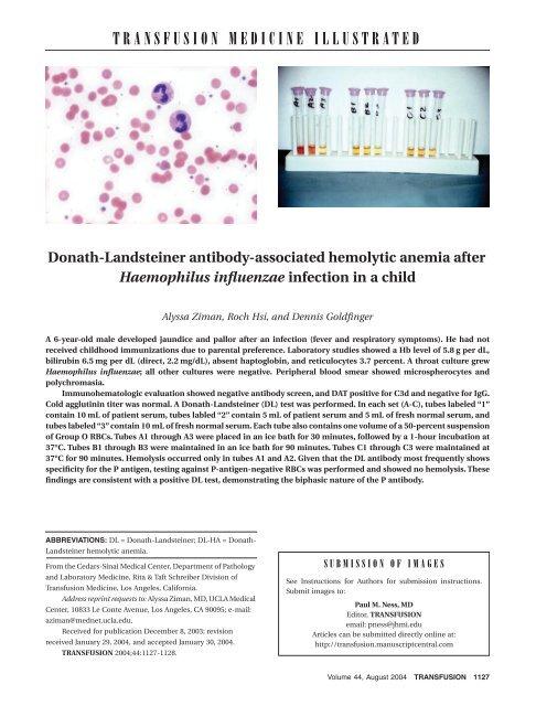 Donath-Landsteiner antibody-associated hemolytic anemia