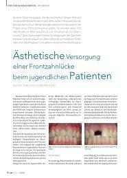 SP0607_16-20_Zahn (Page 1) - ZWP online