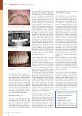Dental Barometer 03 2007 - Champions-Implants - Page 3