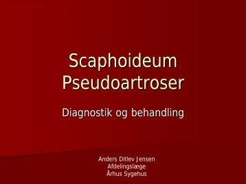 Scaphoideum Nonunion
