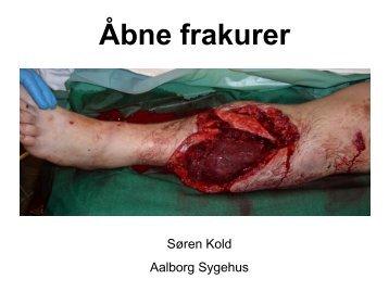 J Orthop Trauma. 2006 Jul;20(6)
