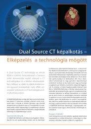 Dual Source CT képalkotás – Elképzelés a technológia mögött