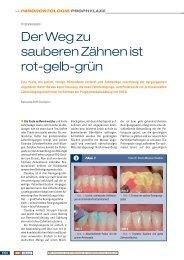 DZ313_050-051_Voco (Page 1) - ZWP online