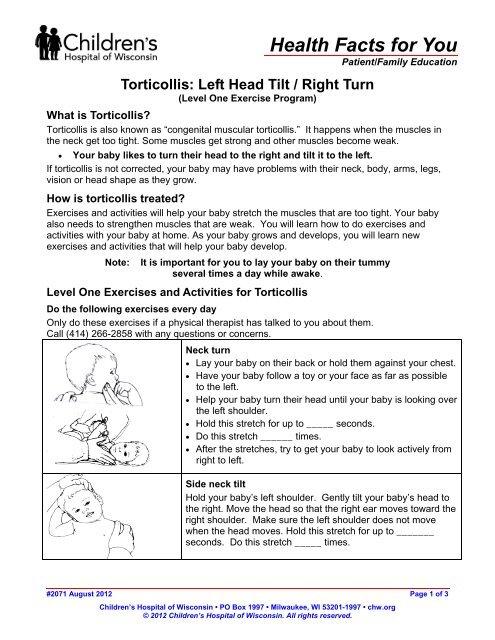 Torticollis Left Head Tilt/Right Turn - Children's Hospital