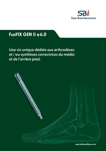 FusiFIX™ GEN II ø 6.0 - Small Bone Innovations