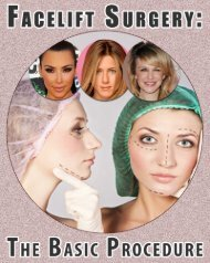 FaceliftSurgery: The Basic Procedure