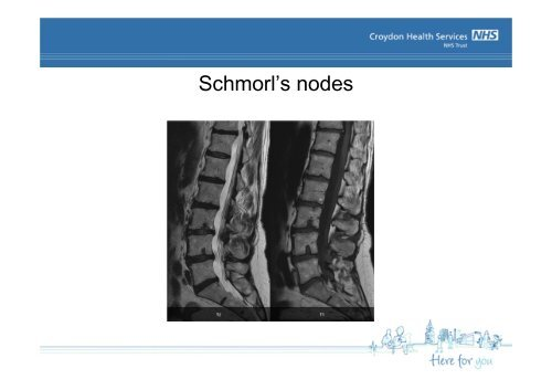 Imaging of the Spine - Croydon Health Services NHS Trust