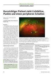 Kurzsichtiger Patient sieht Lichtblitze, Punkte und einen peripheren ...