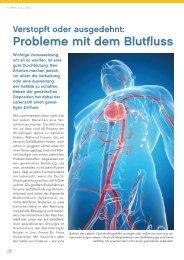 Probleme mit den Blutgefäßen - gesund-in-ooe.at