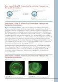 Presbyopie - Page 4