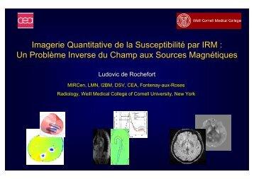 Imagerie Quantitative de la Susceptibilité par IRM : Un ... - IRCCyN