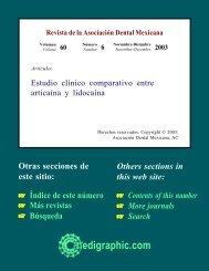 Estudio clínico comparativo entre articaína y ... - edigraphic.com