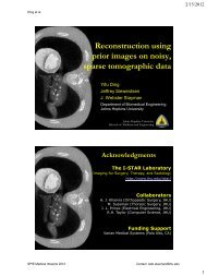 Reconstruction using prior images on noisy, sparse tomographic data
