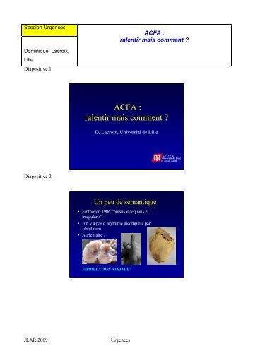 ACFA: ralentir mais comment - JLAR