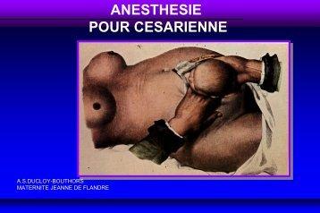 Anesthésie pour césarienne - JLAR