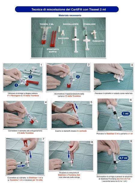 tecnica di miscelazione tisseel scatola cartifill - Joint