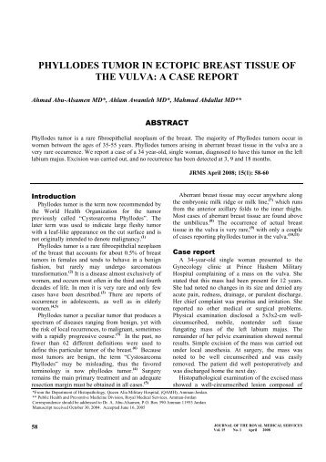 Phyllodes Tumor in Ectopic Breast Tissue of the Vulva: A case report