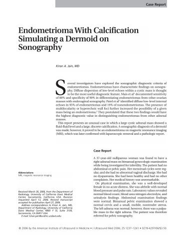 Endometrioma With Calcification Simulating a Dermoid - Journal of ...