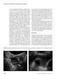 Endometrioma With Calcification Simulating a Dermoid - Journal of ... - Page 2