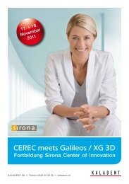 CEREC meets Galileos / XG 3D - KALADENT AG