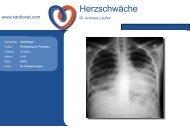 Herzschwäche - Kardionet.com