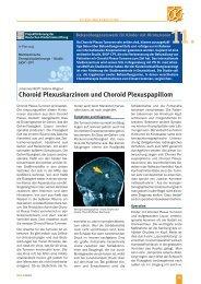 Choroid Plexuskarzinom und Choroid Plexuspapillom