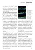 Anti-VEGF-Therapie bei vaskulären Netzhauterkrankungen - Page 2