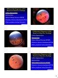 Retinal Detachment - Kontaktlinse Instituttet - Page 6