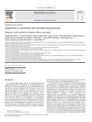 Diagnóstico y tratamiento del carcinoma hepatocelular