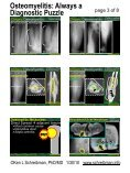 Osteomyelitis: Always a Diagnostic Puzzle - Page 3