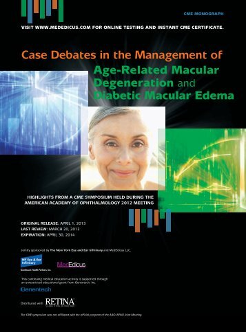 Case Debates in the Management of Age-Related Macular ...