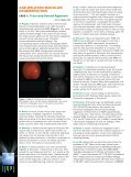 Case Debates in the Management of Age-Related Macular ... - Page 4