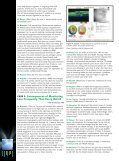 Case Debates in the Management of Age-Related Macular ... - Page 6