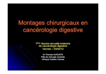 Montages chirurgicaux AUGUSTE - Oncovannes