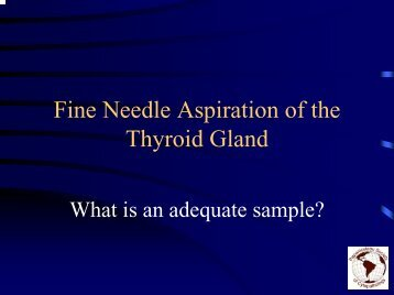 Fine Needle Aspiration of the Thyroid Gland - Papanicolaou Society ...