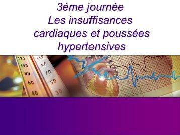 Hospitalisation pour insuffisance cardiaque
