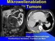 Mikrowellenablation solider Tumoren – Möglichkeiten und ... - Saint